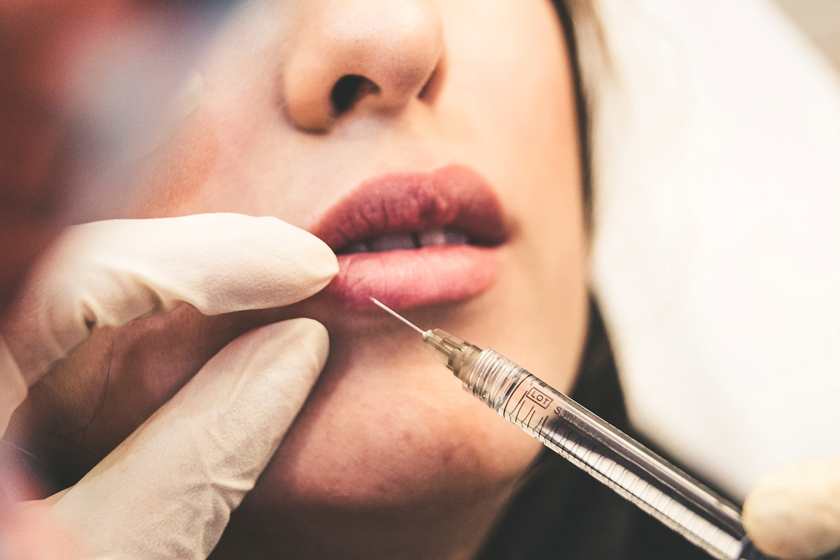 Lippen aufspritzen mit Hyaluronsäure